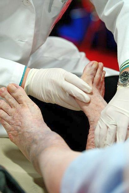 Zalecane jest regularne badanie stóp u przewlekle chorych na cukrzycę