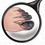 Gangrena (martwica, zgorzel) sucha palcow u stopy cukrzycowej. Nieleczona stopa niedokrwienna naczyniowa lub neuropatyczna moze doprowadzic do amputacji stopy - operacji malej lub duzej
