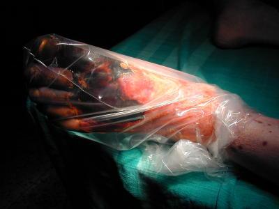 Zgorzel stopy. Amputacja nogi - przeciecie kosci i wytworzenie kikuta - u chorego na cukrzyce i krytyczne niedokrwienie konczyny. Zdjecia autorstwa Wayne Smith, RN z 2000 roku podczas jego wolontariatu w charakterze pielegniarza w nepalskim szptalu w Banepa, Kavra (Scheer Memorial Hospital).