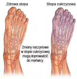 Stopa zdrowa - stopa cukrzycowa: Zmiany naczyniowe w stopie cukrzycowej moga doprowadzic do gangreny - martwicy lub zgorzeli.
