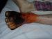 Stopa cukrzycowa | Gangrena | Amputacja nogi poniżej kolana | Przecięcie kości i wytworzenie kikuta | Krytyczne niedokrwienie kończyny | Zdjęcie autorstwa Wayne Smith, RN podczas jego wolontariatu w charakterze pielęgniarza w nepalskim szptalu w Banepa, Kavra (Scheer Memorial Hospital).