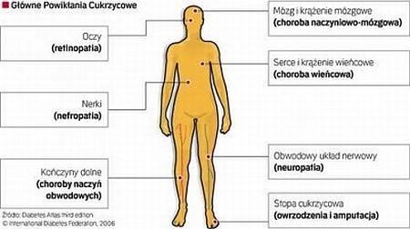 Glowne powiklania cukrzycowe: oczy (retinopatia), nerki (nefropatia), konczyny dolne (choroba naczyn obwodowych), mozg i krazenie mozgowe (choroba naczyniowo-mozgowa), serce i krazenie wiencowe (choroba wiencowa), obwodowy uklad nerwowy (neuropatia), stopa cukrzycowa (owrzodzenia i amputacja)