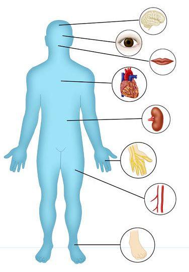 Przewlekle powiklania cukrzycy: mozg (choroba naczyniowo-mozgowa), wzrok (retinopatia), uklad pokarmowy (rak trzustki, jelita grubego), serce (choroba wiencowa), nerki (nefropatia), dlonie (gangrena), konczyny dolne (choroba naczyn obwodowych), stopa cukrzycowa (owrzodzenia, martwica, zgorzel, gangrena)
