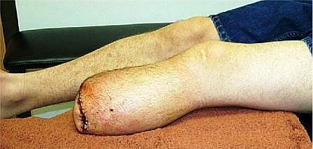 Kikut konczyny po amputacji na poziomie goleni (piszczeli). Przewazajaca wiekszosc (90 proc.) pacjent�w po amputacji ponizej stawu kolanowego z zadowoleniem uzywa protez.