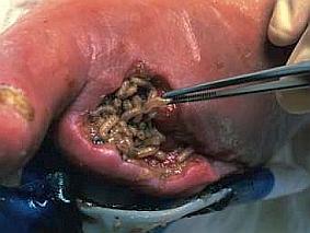 Larwy muchy muchy plujki lucilia sericata o wielkości kilku milimetrów (zdjecie) | Larwoterapia - leczenie robakami owrzodzeń niegojących się ran | Biochirurgia - usuwanie tkanek martwiczych za pomocą larw much (ang. maggot debridement therapy, MDT).