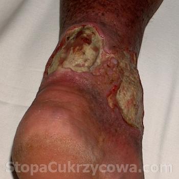 Swiadectwo Henryka P., zdjecie lewej nogi, luty 2012 r., stan przed zazywaniem preparatu Clear-G Formula