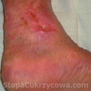 Swiadectwo Henryka P., zdjecie lewej nogi, pazdziernik 2012 r., stan po leczeniu preparatem Clear-G Formula
